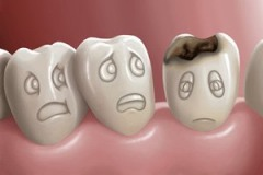dental-cavity-e1410300925974